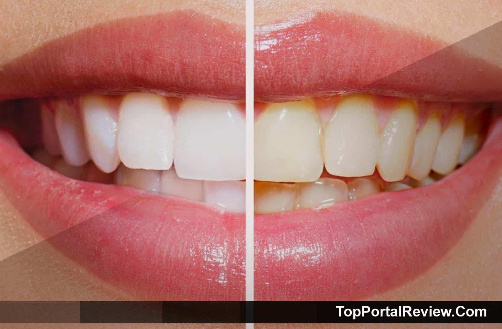 Top 10 Best Whitening Toothpastes For Smokers Coffee Drinkers
